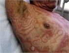 環状紅斑 | 今日の臨床サポート - 診断・処方・エビデンス -